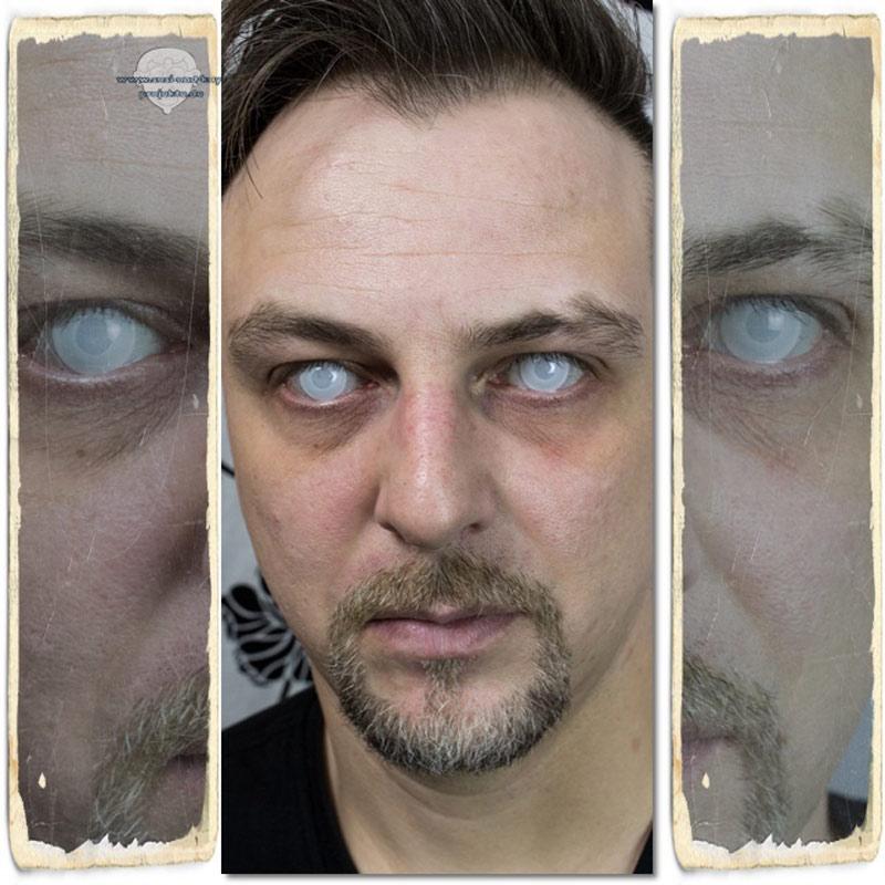 Zombie-Linsen-Tod-effekt