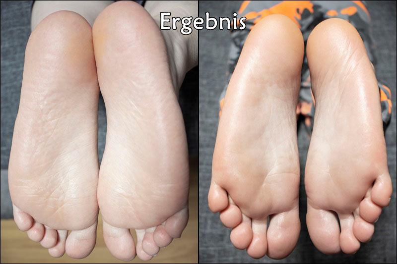 Weiche-Füße-Ergebnis
