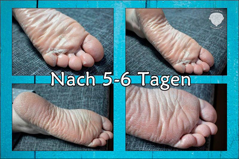 schöne-Füße-Summer-Foot-Wirkung